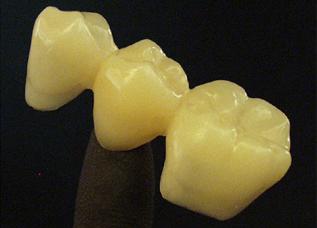Dentalos Blank 2