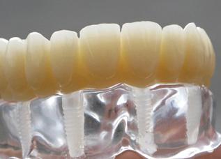 DentalPlus 2