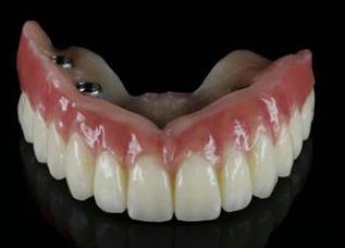 Dentalos 1