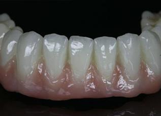 Dentalos 3