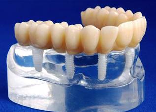 Dentalos 5
