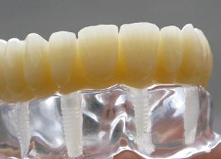 Dentalos Blank 1