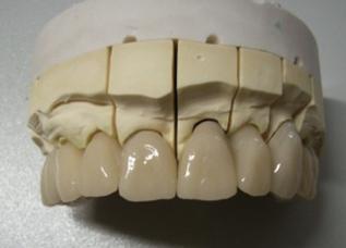Dentalos Blank 3