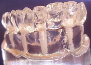 Dentalos Blank 4