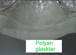 Polyan Spritzguss 5